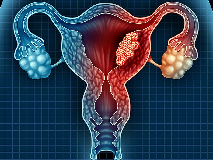 лечение в Израиле рака матки