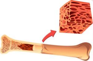 Процедура трансплантации костного мозга в Израиле