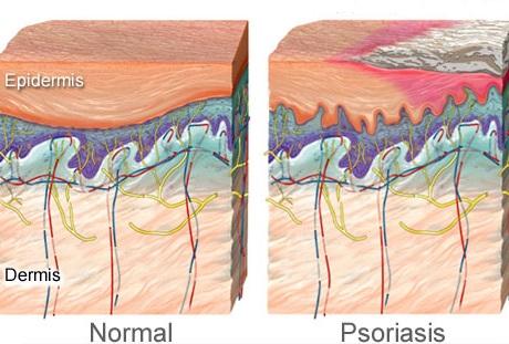 Лечение псориаза в Израиле на Мертвом море