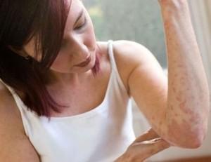 Лечение атопического дерматита в Израиле