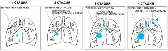 лечение рака легких в Израиле сколько стоит