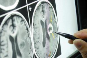 нейроонкология в Израиле
