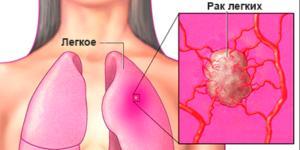 Как проявляется рак легких?