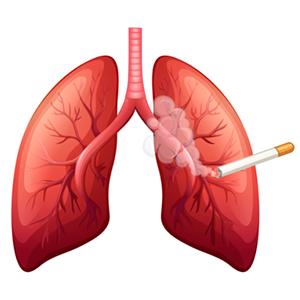 курение вызывает рак легких