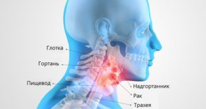 сколько стоит лечение рака горла в Израиле