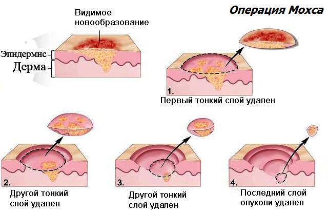 операция Мосха при лечении базалиомы