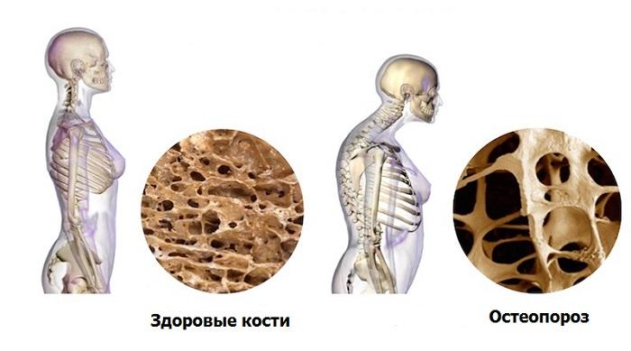 остеопороз лечение в Израиле