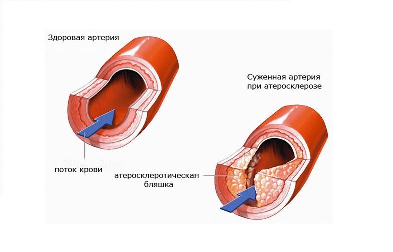 Атеросклероз - лечение в Израиле