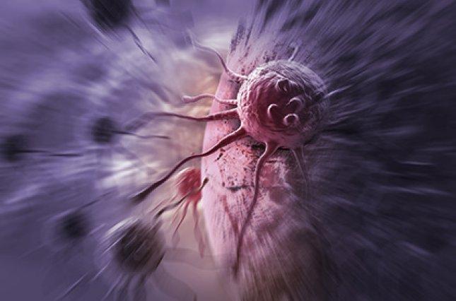 Предупредить рак толстой кишки станет проще