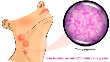 Лечение лимфомы в Израиле, Top Clinic Ichilov