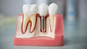 Имплантация зубов в Израиле