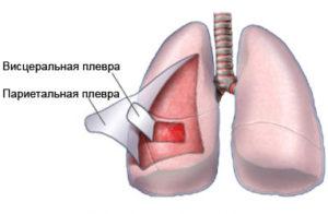 Лечение рака плевры в Израиле