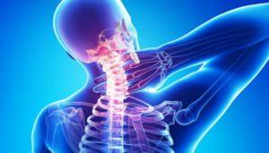 Лечение остеохондроза в Израиле