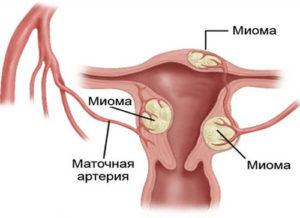 Лечение миомы матки в Израиле