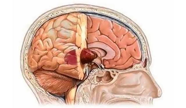 Рак мозга: диагностика и лечение