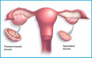 Лечение поликистоза яичников в Израиле