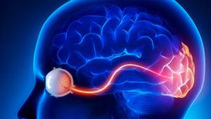 Лечение атрофия зрительного нерва в Израиле