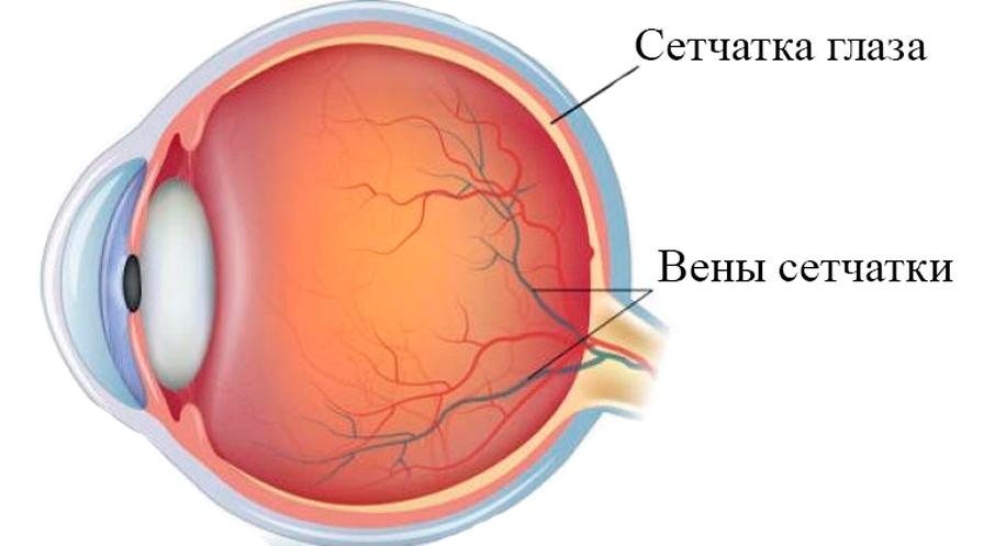 Лечение ретинита в Израиле