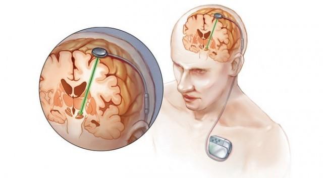 Глубокая стимуляция мозга