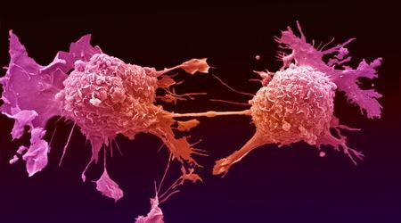 Лечение рака стволовыми клетками в Израиле