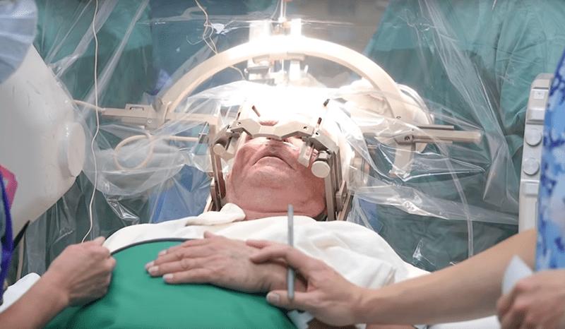 Глубокая стимуляция головного мозга в Израиле