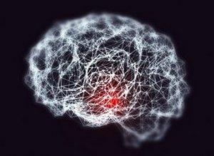 Лечение болезни Альцгеймера в Израиле
