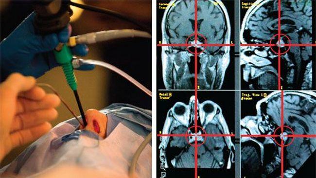 Операции при раке гипофиза в Израиле
