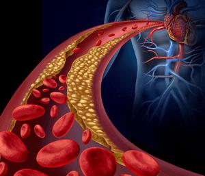 Лечение ишемической болезни сердца в Израиле