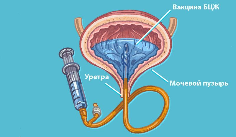 БЦЖ-терапия при лечении рака мочевого пузыря в Израиле.