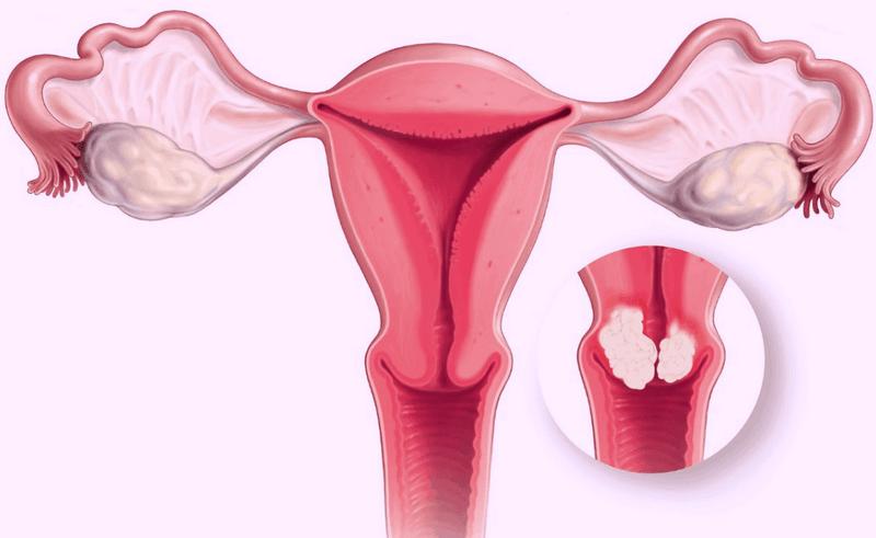 Виды рака шейки матки