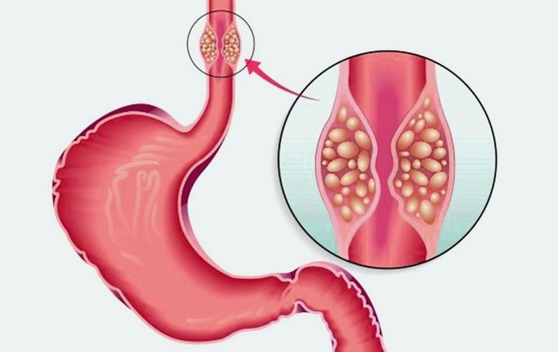 Типы рака пищевода